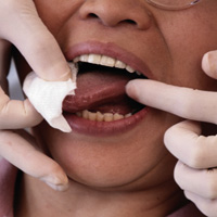 Woman having a mold of her teeth taken