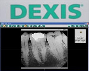 Durham Dentist Dexis dental radiology