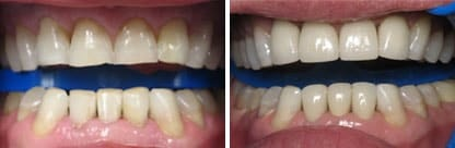 Image of an actual before and after veneers case