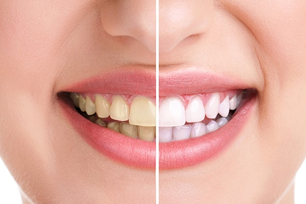 A side-by-side comparison of yellow, opaque teeth vs bright white teeth that have been whitened by dentist