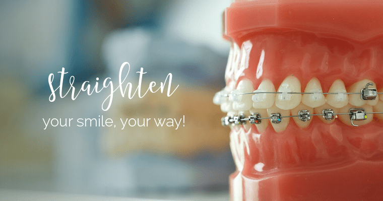 Close-up of braces that can straighten your smile your way