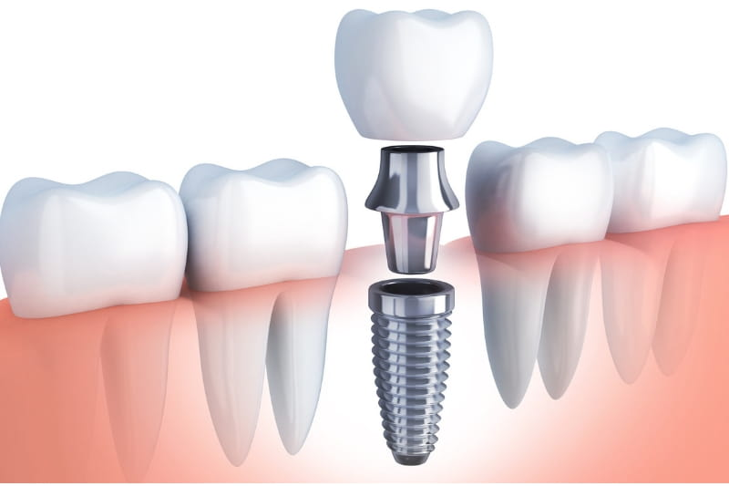 The complete dental implant including the crown, abutment, and post, next to natural teeth and roots.
