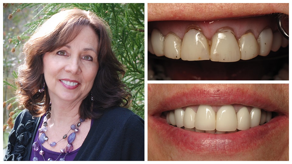 Actual patient before and after with porcelain veneers.