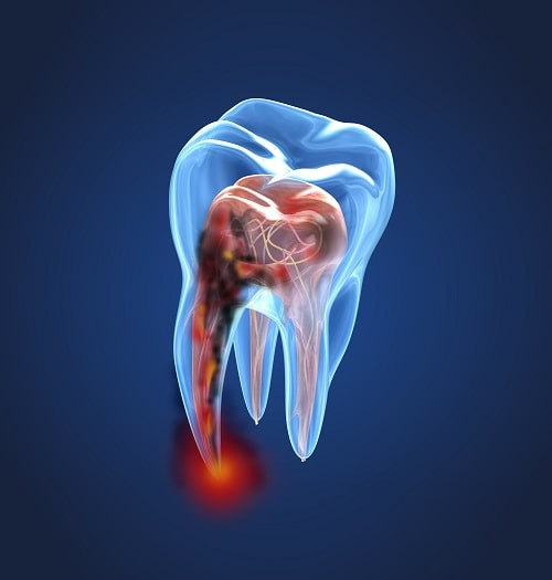 3D image of an infected tooth needing a root canal by our Durham, NC dentists.