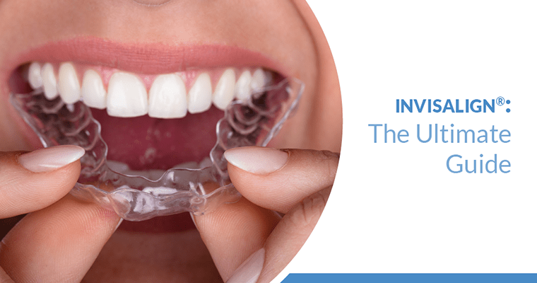 Woman inserting invisible clear aligner over teeth after learning how does Invisalign work.